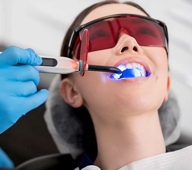 Chicago Professional Teeth Whitening
